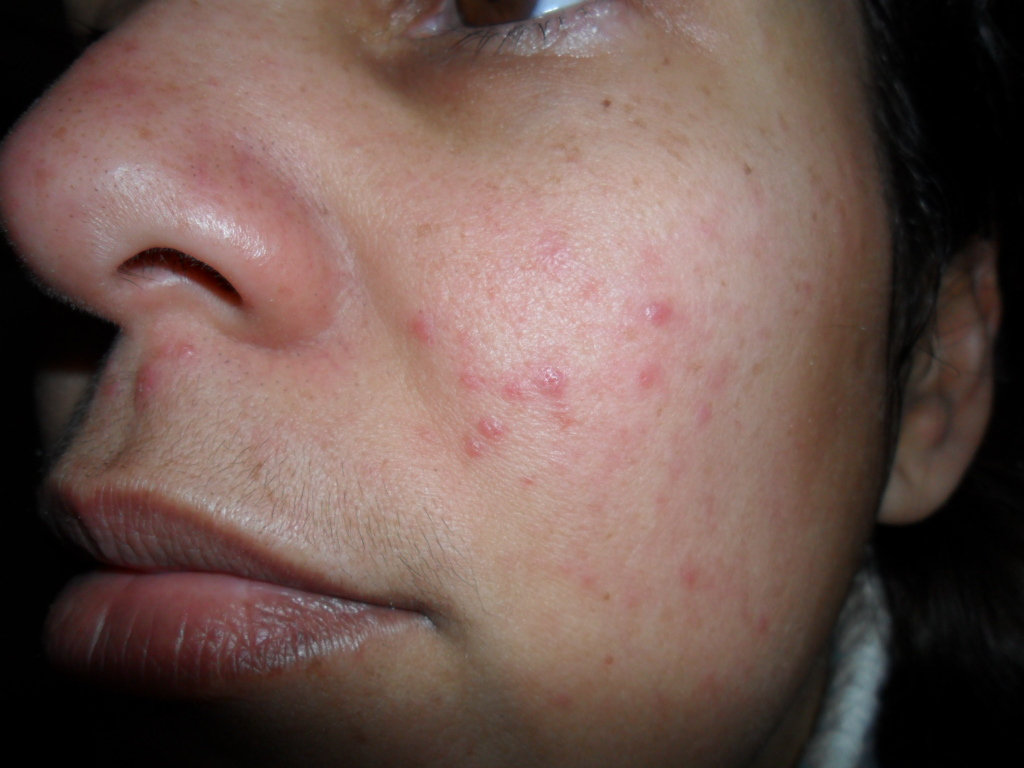 Rosacea and PMS